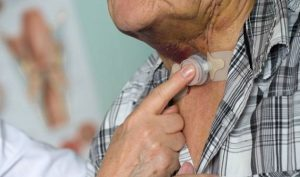 Pacienții cu laringectomie cer decontarea filtrelor umidificatoare pentru canulele traheale